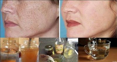 Come togliere posti di pigmentary da una faccia in domashnikh.usloviya